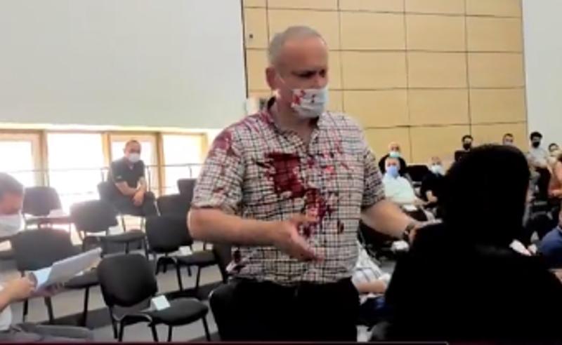 """საკრებულოს სხდომაზე ,,ენმ""""-ის ფრაქციის თავმჯდომარეს წითელი საღებაში შეასხეს (ვიდეო)"""