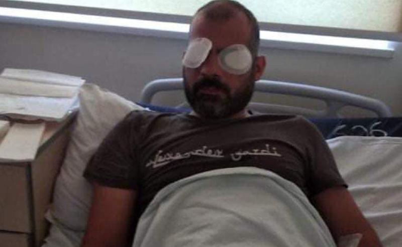 თავდასხმა მედიაზე -  საზოგადოებრივი მაუწყებლის ოპერატორს თვალები დაუზიანეს