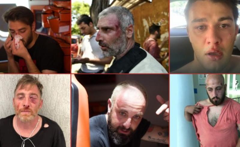 ჟურნალისტების უფლებების დარღვევის შემთხვევები კრიტიკულ ზღვარს მიუახლოვდა - NGO-ები
